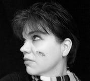 Cáncer de piel Fotos de archivo libres de regalías