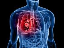 Cáncer de pulmón Imagen de archivo libre de regalías