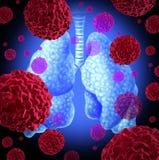 Cáncer de pulmón Foto de archivo libre de regalías