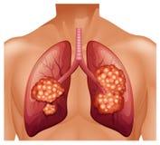 Cáncer de pulmón en ser humano Fotografía de archivo libre de regalías