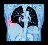 Cáncer de pulmón (exploración del CT del pecho y del abdomen: muestre el cáncer de pulmón correcto) (el avión coronal) Imágenes de archivo libres de regalías