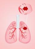Cáncer de pulmones Imágenes de archivo libres de regalías