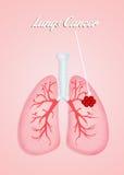 Cáncer de pulmones Fotos de archivo