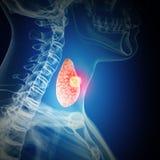 Cáncer de tiroides ilustración del vector