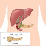 Cáncer pancreático Foto de archivo libre de regalías