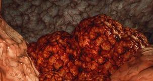 Cánceres de Brest del cáncer de colon del linfoma del carcinoma del quiste del tumor del cáncer del concepto de la oncología de l ilustración del vector