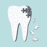 Cárie dental Foto de Stock Royalty Free
