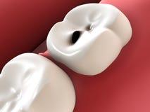 Cárie do dente Imagens de Stock
