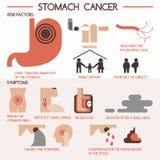Câncer de estômago eps 10 Imagens de Stock