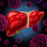 Câncer do fígado humano Imagens de Stock Royalty Free