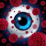 Câncer do olho ilustração royalty free