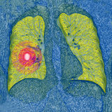 Câncer pulmonar CT Foto de Stock