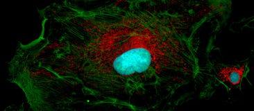 Células del fibroblasto: grande y pequeño Fotos de archivo libres de regalías