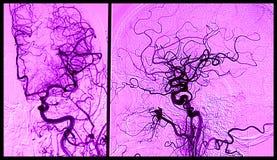 Cérebro angiograhy, arteriografia Imagem de Stock