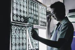 Cérebro da demência em MRI fotografia de stock royalty free