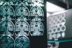 Cérebro da demência em MRI fotografia de stock