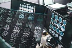 Cérebro da demência em MRI fotos de stock