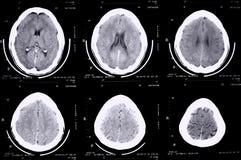 Cérebro da varredura do Ct Fotografia de Stock Royalty Free