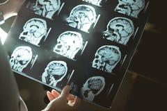 Cérebro MRI e demência imagem de stock royalty free