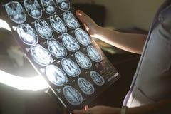 Cérebro MRI e demência fotografia de stock
