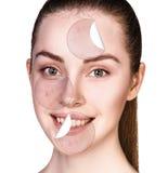 Círculos con el unstick del acné de la piel sana Imagenes de archivo