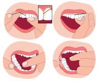 Cómo floss sus dientes Imágenes de archivo libres de regalías