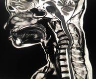 C-épine d'IRM par 67 ans femelles photo libre de droits