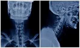 C-позвоночник рентгеновского снимка стоковая фотография