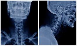 C-espina dorsal de la radiografía fotografía de archivo
