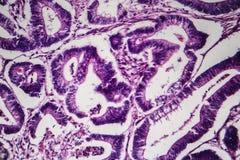 C?ncer de colon, microgr?fo ligero ilustración del vector