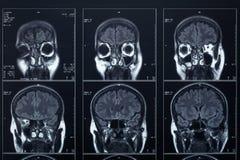 Cabeça do raio X e radiografia do cérebro Fotos de Stock Royalty Free