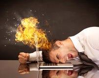 A cabeça forçada do ` s do homem de negócio está queimando-se Fotografia de Stock Royalty Free