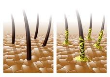 Cabelo normal e gorduroso ilustração do vetor