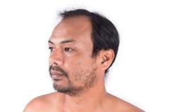 Cabeza calva del hombre de la cara Imagen de archivo libre de regalías