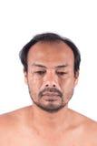 Cabeza calva del hombre de la cara Fotografía de archivo libre de regalías