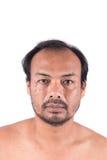 Cabeza calva del hombre de la cara Foto de archivo libre de regalías