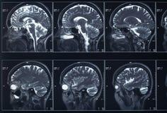Cabeza y cerebro de la radiografía Foto de archivo libre de regalías