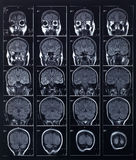 Cabeza y cerebro de la radiografía Imagenes de archivo