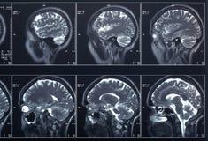 Cabeza y cerebro de la radiografía Imágenes de archivo libres de regalías