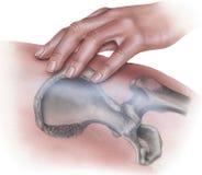 Cadera - mano que aplica la presión sobre el hueso Imagen de archivo libre de regalías