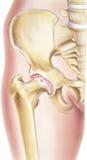 Cadera - osteoartritis de la junta Imagen de archivo
