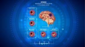 Caillot sanguin dans le cerveau illustration libre de droits