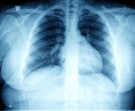 Caixa do raio X Imagem de Stock Royalty Free