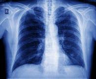 Caixa do raio X Foto de Stock
