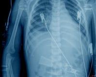 Caixa do raio X Imagens de Stock Royalty Free
