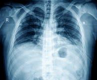 Caixa do raio X Foto de Stock Royalty Free