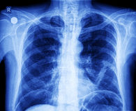 Caixa do raio X Fotografia de Stock