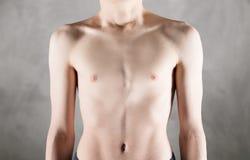 Caixa magro de um adolescente masculino fotografia de stock royalty free