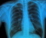 Pulmão do raio X Imagens de Stock