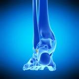 The calcaneofibular ligament. Medically accurate illustration of the calcaneofibular ligament Stock Photo